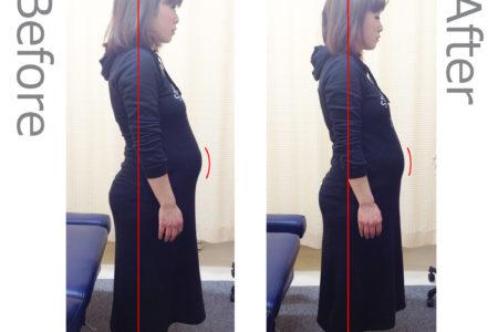 妊娠中の腰痛、恥骨痛が改善した國分様
