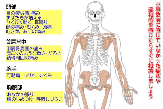 須賀川の接骨院sasukeneの交通事故むちうち治療